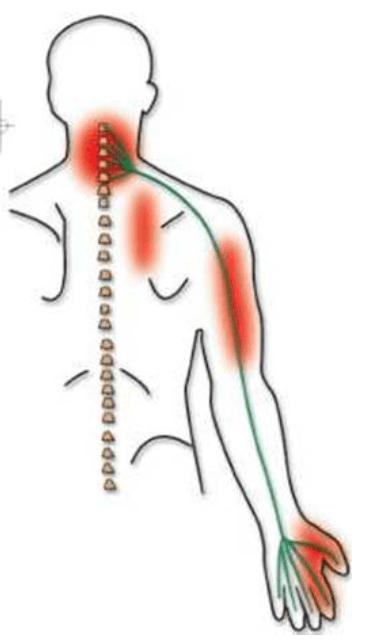 sos névralgies cervico-brachiales